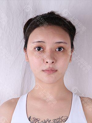 下面部肉多,松弛下垂,一直困擾著我,不間斷的打瘦臉針,維持時間太短,面部的松弛下垂也沒得到改善,去醫院注射瘦臉針時,順帶了解下有什么方法解決臉部的情況。