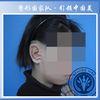 [术后350天] 良好的治疗时间是在7岁左右。生理上,3岁幼儿的耳廓已达成人的85%,10岁以后耳廓宽度几乎不再生长,5-10岁间的儿童耳廓的长度仅比成年人小数毫米,在此期间进行耳廓再造,成年后再造耳与患耳的大小及形态可做到尽可能相似。