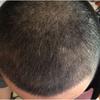 [术后32天] 转眼已经一个月了。移植的头发开始进入脱落期了,已经有部分头发开始脱落了,但是还能看到发根是在头皮里面的。没脱落的头发倒是长长了很多。后脑勺的毛囊伤口愈合还挺快,差不多上上个星期就已经不疼了,疤痕不仔细看也看不太出来。