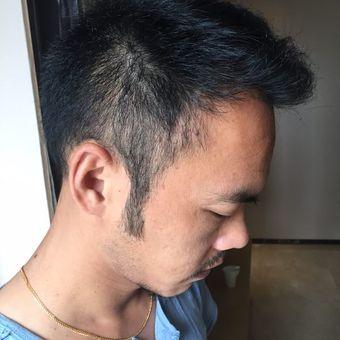 上海美莱袁玉坤种植毛发