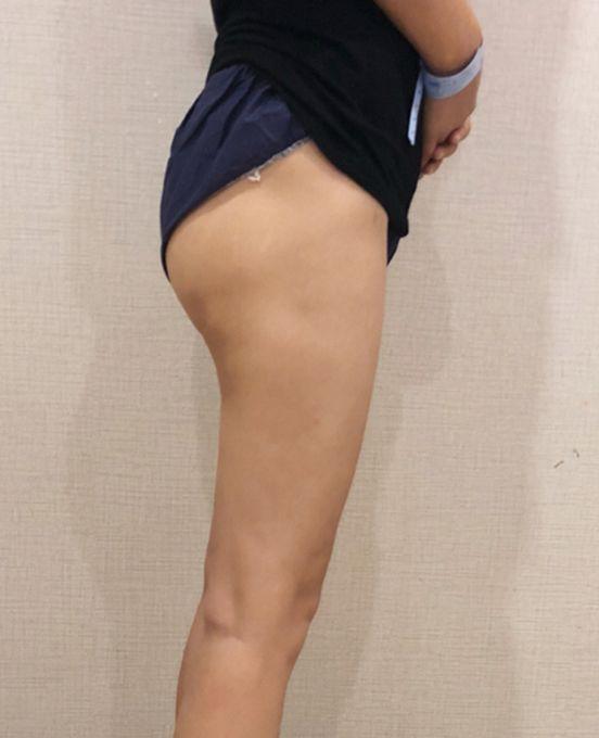 水雕大腿吸脂 項目分類:美體塑形 吸脂