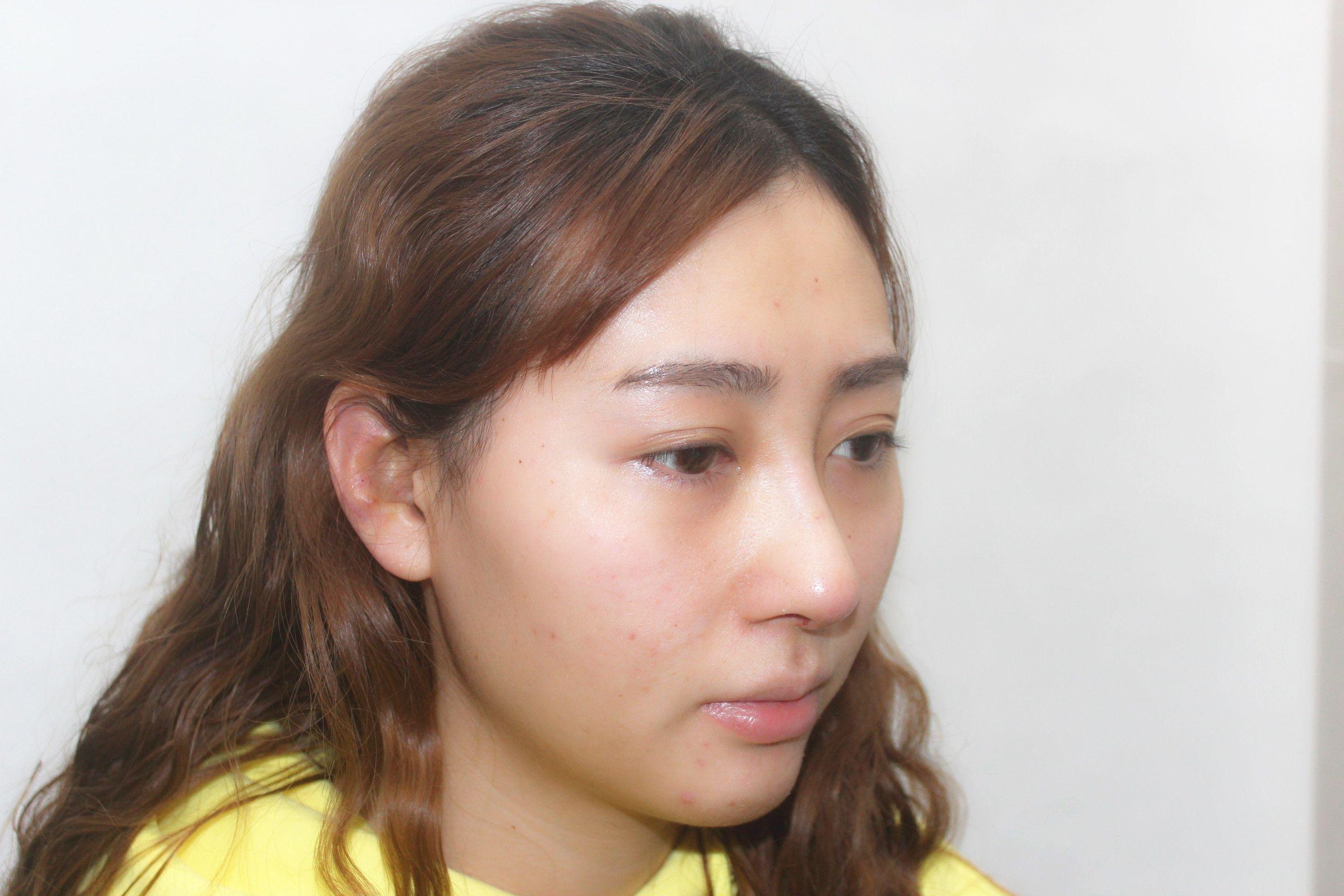 今天拆線了,現在的鼻子基本都恢復的差不多了。高度差不多也定型了,腫脹基本消失了,就是鼻子鼻部的疤痕還沒有完全自我修復好。靜待恢復好之后的效果!