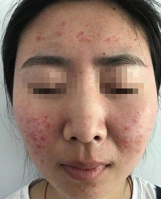 面頰兩側長痘有一年多了,不是特別嚴重但總是反反復復復發,了解了很多祛痘修復項目,做了很多水楊酸的功課,因為恢復期快,皮膚不會有破損跟創傷,不影響生活。