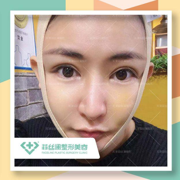面部吸脂|全面部黃金微雕 項目分類:面部輪廓 瘦臉 射頻溶脂瘦臉