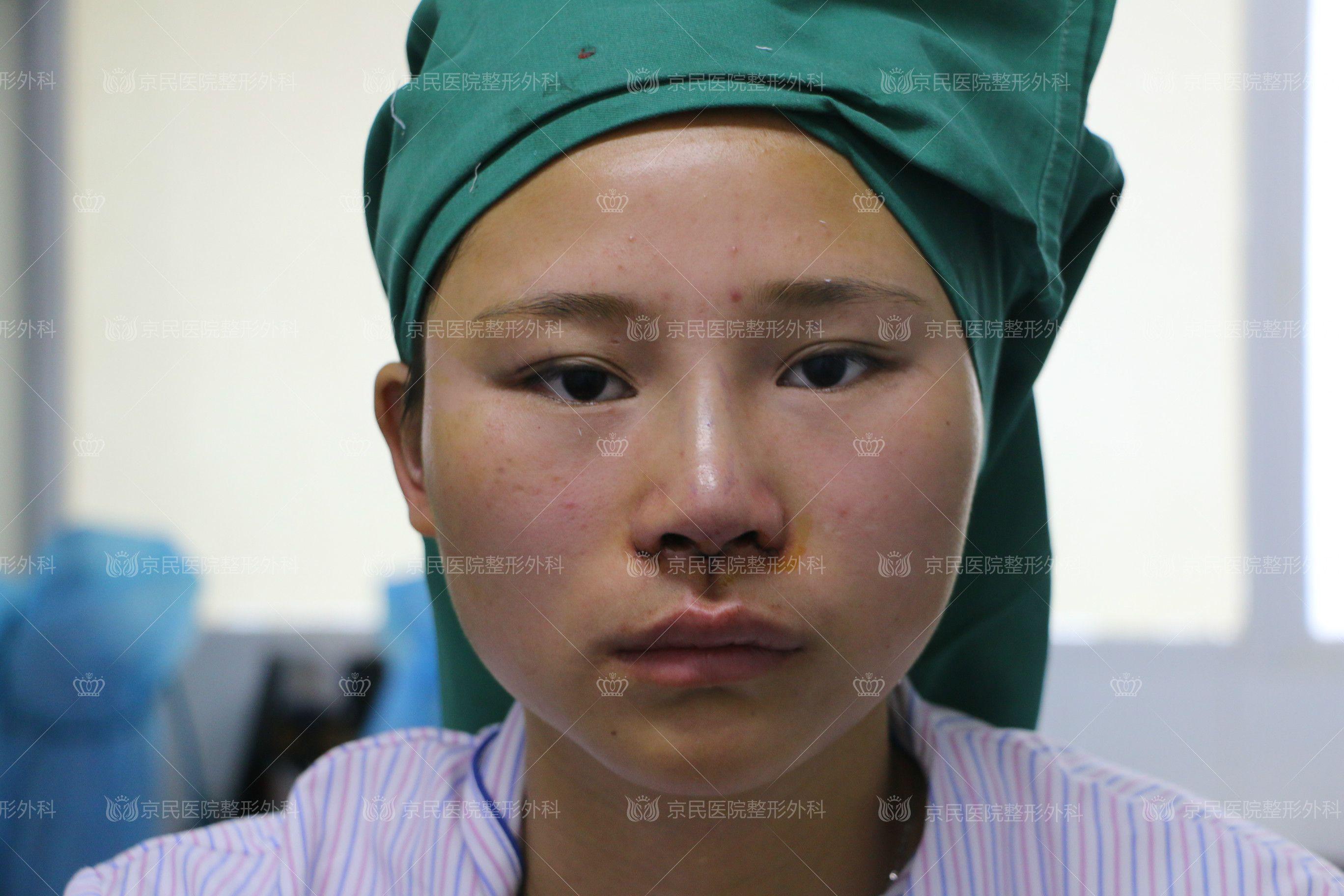 鼻综合手术_鼻综合手术