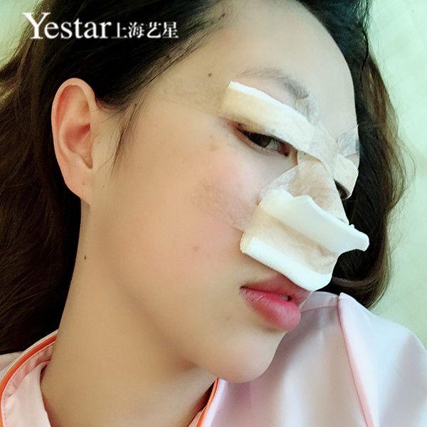 【切開雙眼皮+鼻部整形】術后第2天 哈嘍大家好,剛做好手術,說實話鼻子還是有點不舒服的,連呼吸都有點困難呢,不過這邊的護士還是不錯的,過下子就進來問我有什么需要幫忙的,因為這樣他們怕我行動上有什么不方便吧。好吧,安心下來,期待美麗的自己。
