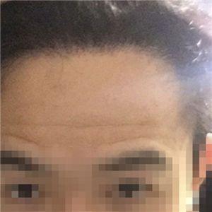 霍先生-种植发际线 项目分类:植发养发 植发 种植发际线