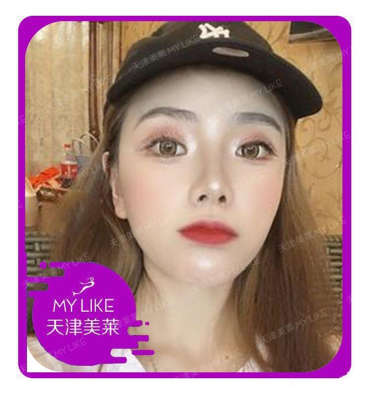 韩式原生美鼻—美莱旗舰店 项目分类:鼻部整形 鼻部综合