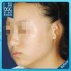 [术后1天] 一般来说,超过6个月以上的宝宝,耳骨定型后很难再通过按压、黏胶布、戴矫正器来纠正了。如果有必要,可以等到6岁后,通过整形手术来矫正。
