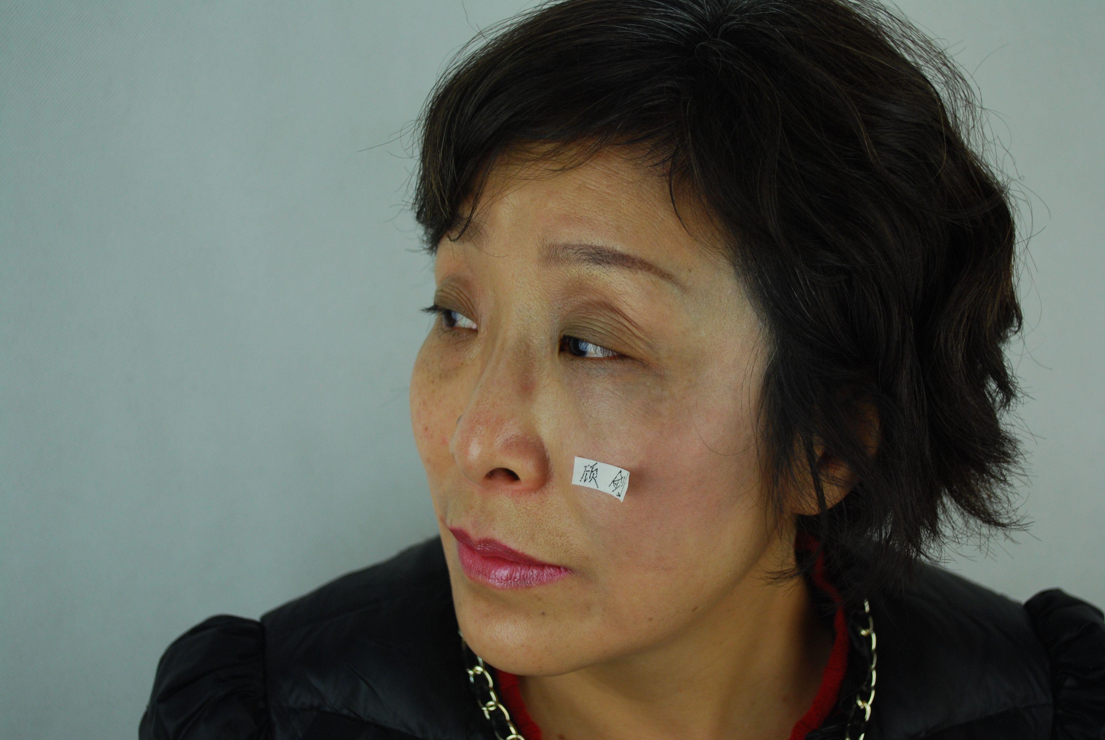 太田痣祛除 项目分类:皮肤管理 皮肤修复 祛胎记