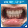 我的牙齿乱,黄,还有牙缝。也不明白自己为啥挨到了这么大了才来弄牙齿,以前都是怎么过来的哈哈。效果很快,牙齿变白了,整齐了,牙缝也不见了,今天真是个难忘的日子! 因为方案制定后,要根据我的牙齿情况定制牙贴面,因此需要一周左右的时间等候。得知自己的牙贴面制作完成时,兴奋极了。