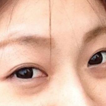 【肉毒素】祛除眼袋