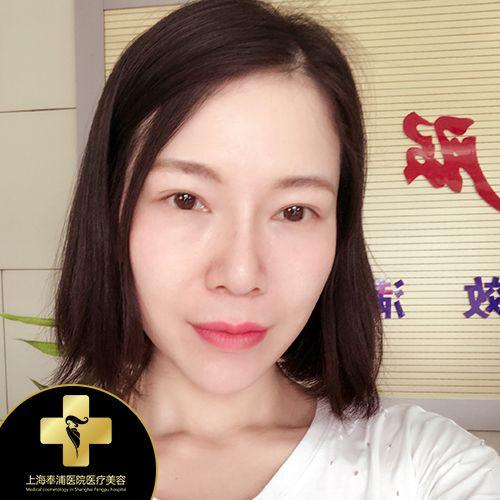 上海奉浦 假體下巴 項目分類:自體脂肪填充 自體脂肪墊下巴
