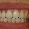 [术后8天] 小陈的牙洞很明显,在门牙的位置,门牙这个位置很尴尬,一张嘴就可以看见,所以小陈来我院补牙,希望能补好,看不出补过的痕迹, 医生看了之后,建议小陈用3m树脂补牙材料,门牙是门面,用3m更好,颜色与真牙无异。