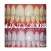 [术后2天] 牙齿较黄,牙结石较多,通过皓齿美白和洗牙疗程的清洁美白后,牙齿白度明显提升,顾客十分满意。