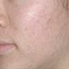 [术后18天] 做完半个多月了,已经看不出做微针的痕迹了,同事们都说脸小了,提升效果首先表现出来,痘印在一点点退,据说更好效果在30天时显现