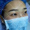 [术后2天] 治疗即刻,眉形立显。治疗时间1个小时左右,眉毛表皮敷麻药
