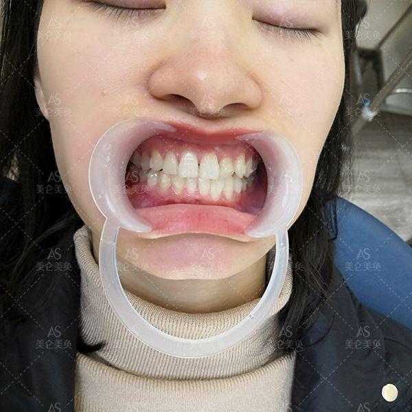 时代天使隐形矫正 项目分类:口腔 牙齿矫正 隐形托槽矫正