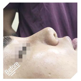 纽菲思男式鼻部综合整形