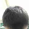 [术后69天] 两个月了,头发基本都稳定了,尤其头顶的那部分长得非常浓密,成活率很好!现阶段我已经很满意了,后面要好好保养头发了!有朋友给寄了些自己家种的黑芝麻,说是对头发好!