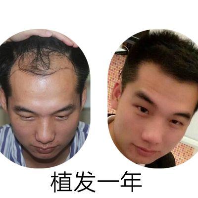 脱发种植作品图