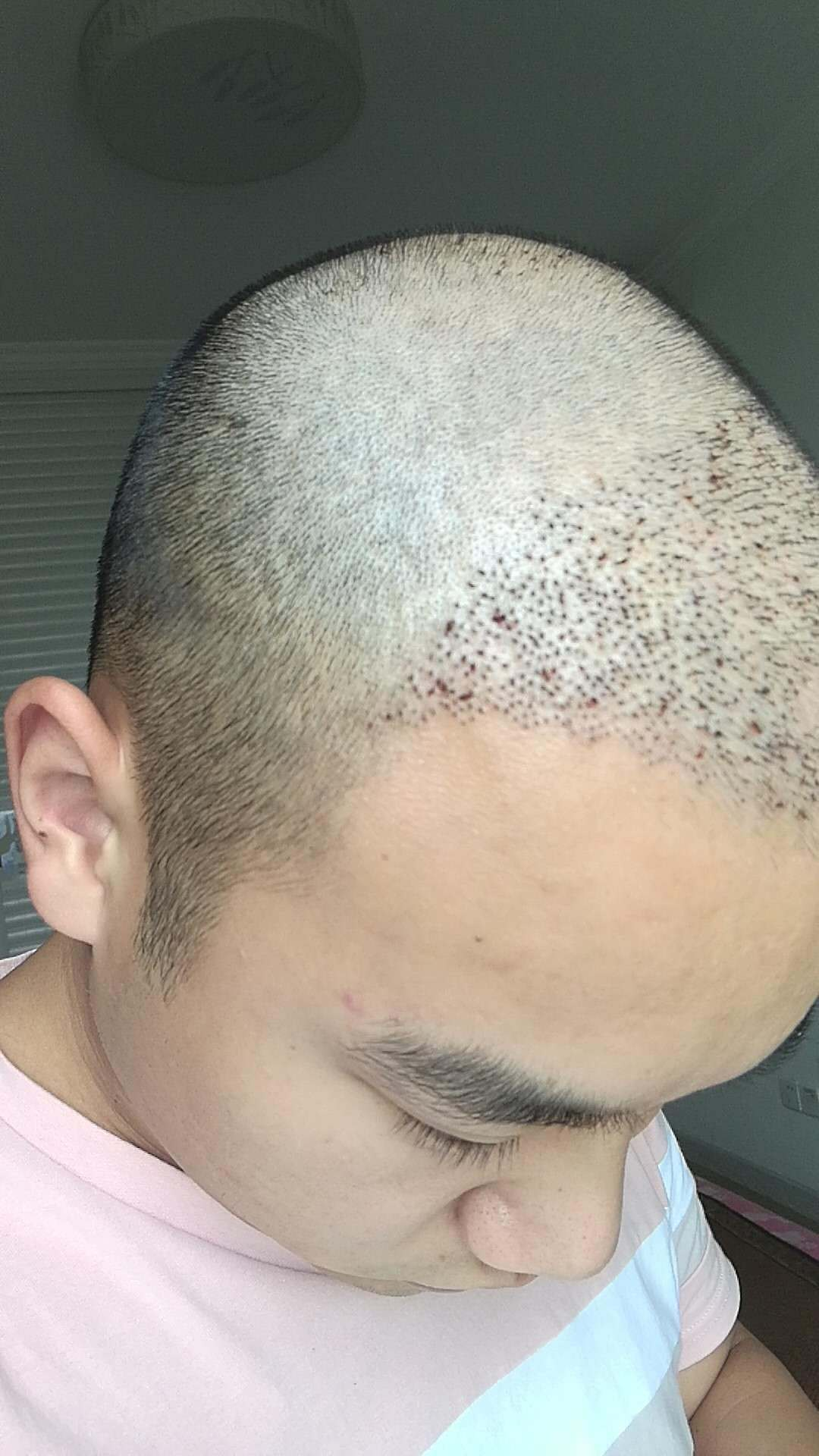植发后消毒