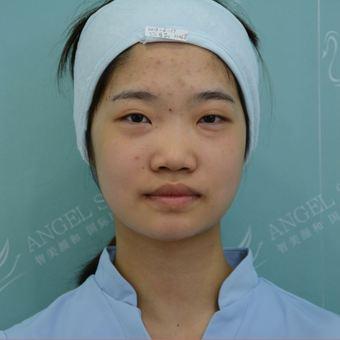 双眼皮案例之自卑女孩变网红