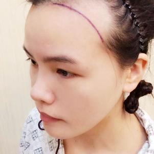 FUE发际线植发