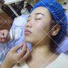 [术后2天] 唇部表皮敷麻药,进口染料上色。治疗过程大概1个小时左右