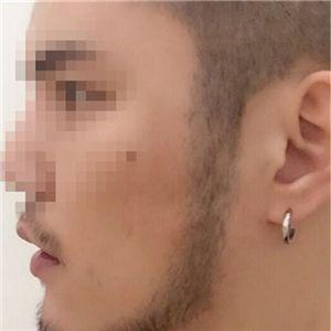 曹先生-种植胡须 项目分类:植发养发 种植胡须