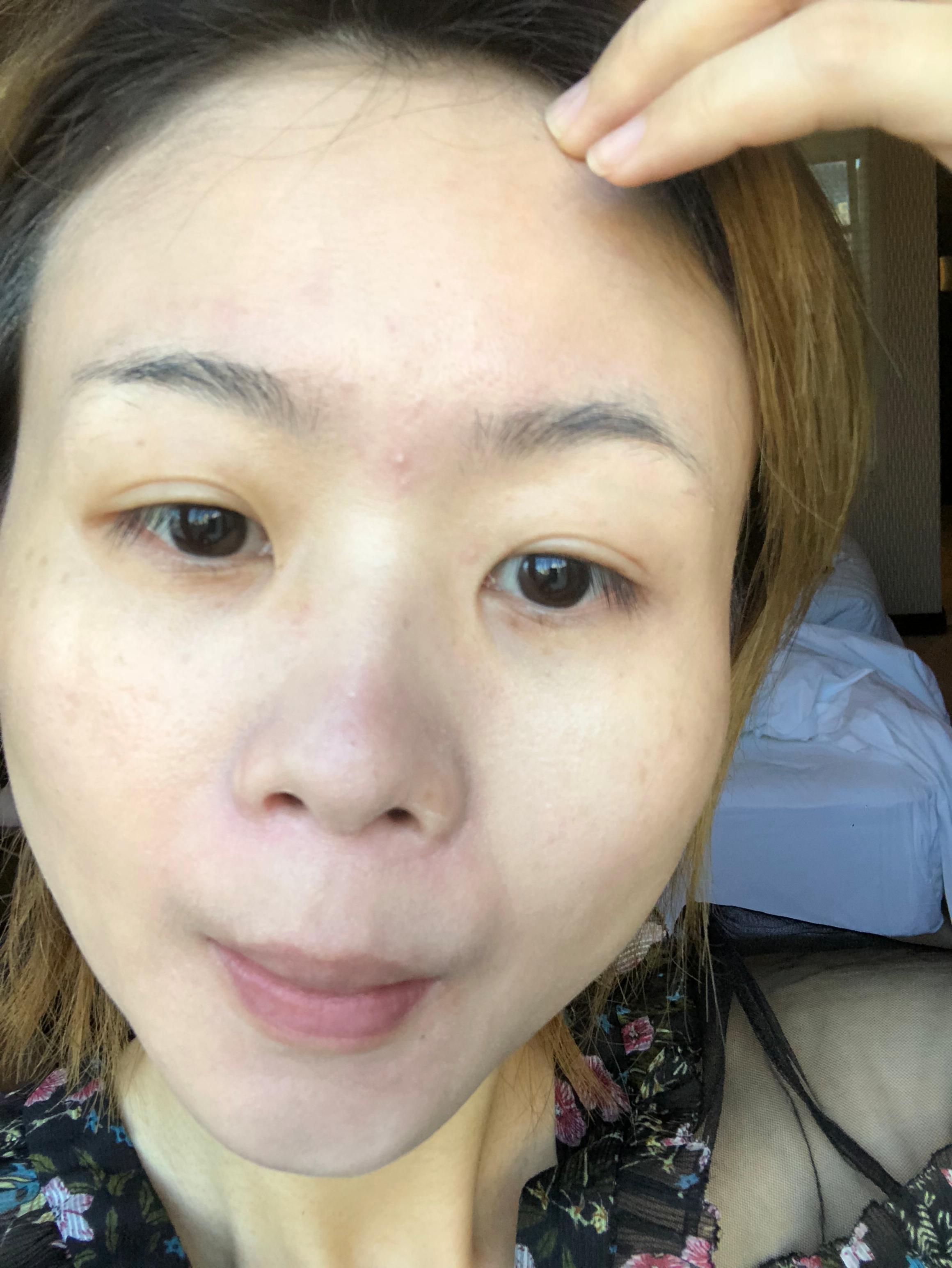 原先臉上的斑點和皮膚暗沉,膚色真的是和年紀不搭,真的是改變一下就完全年輕很多,只要現在好好保養,愛護自己的臉蛋我相信再過幾年也是水嫩噠~