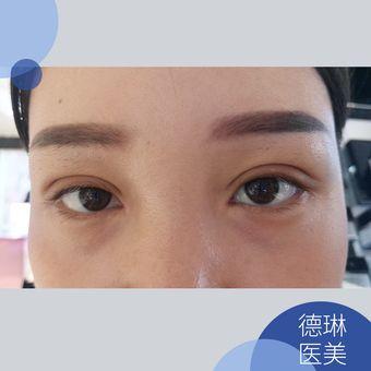 德琳韩医埋线双眼皮+内眼角