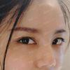 [术后10天] 这几天简直太惊喜了,每天都能看到脸上的变化,才十天而已,让人惊喜的是皮肤都变得好了,很滑!特别后悔以前没有接触过微针,白白浪费这么长时间,不过也很庆幸还能够改善