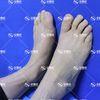 [术后41天] 【圣嘉新邱立东微孔祛除大脚骨】本来我的脚挺顺直秀气的,不过有了大脚骨,主画风突变,变得歪歪斜斜的,大脚趾挤的二趾都有点疼。平时走路疼,别人放假游山玩水,我只能羡慕的看她们的朋友圈,更烦人的是特别费鞋,新买的鞋子总是没1个月就挤得变形了。从网上看到圣嘉新的案例后,就很心动,决定来做手术。现在术后40天了,很庆幸自己的选择,大脚骨凸出没有了,脚也变会了以前顺直秀气的样子。主要是现在走路不再疼了,前几天还和妹妹去了一趟普陀山,顺便也为自己求一段姻缘,全程走走停停的逛了一天,全身都有点酸痛了,脚也没疼。