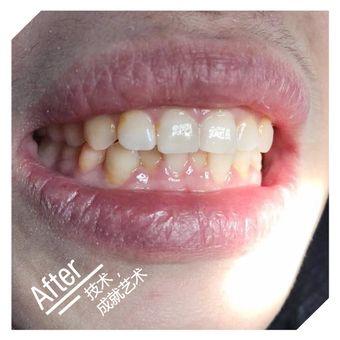 纽菲思牙齿陶瓷贴片修复美牙