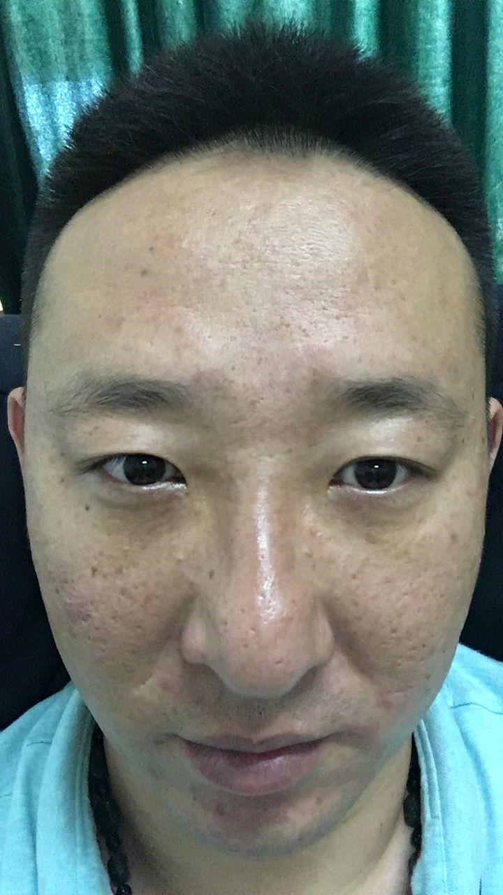 不开刀去眼袋 项目分类:眼部整形 祛眼袋 激光去眼袋