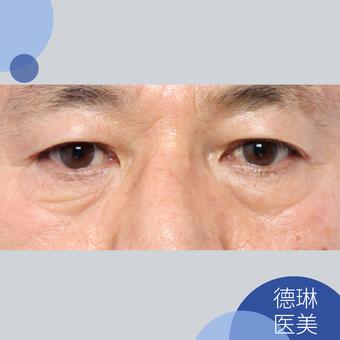 韩式无痕祛眼袋术