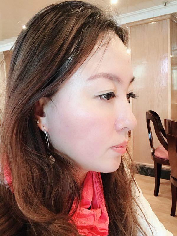面部吸脂 項目分類:面部輪廓 瘦臉 面部吸脂