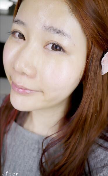 注射Botox瘦臉 項目分類:除皺瘦臉 肉毒素瘦臉