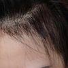 [术后62天] 后脑勺的头发都长起来了,前面的头发宝宝也长长了好些,哈哈