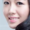 牙齿美白 美容冠