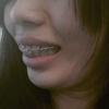 [术后97天] 戴上之后牙齿有被箍紧的感觉,说话快了就会稍稍有点影响,不过问题也不大,和朋友说话他说没看出来我戴着牙套,我自己拍照也看不出来,感觉挺好的,一点也不影响我的生活和工作。看网上很多人说带隐适美会有酸胀和疼痛,不过我现在也没感觉到明显的疼、酸胀这些,不知道是不是戴的时间还比较短的原因 ,总之医生的技术我是满满的肯定啦!想变美肯定是需要坚持的啊!一起见证开了挂的牙齿吧!