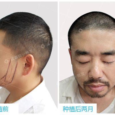胡须种植效果图