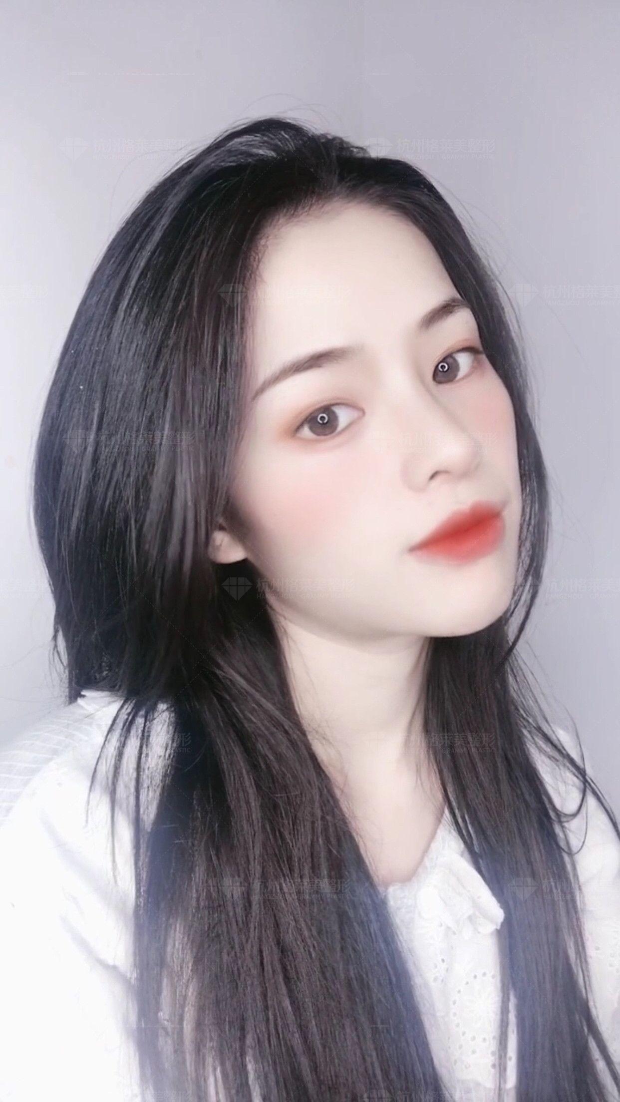 格莱美UD美鼻 项目分类:鼻部整形 鼻部综合