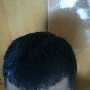 发际线植发