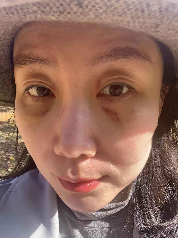 眼部紅紅的與泛黃,在術前做不開刀去眼袋就得知術后會出現的,但術后第一天,眼部沒有那種酸酸脹脹之感,眼袋膨出也消失了,整個手術時間大概20分鐘,沒有出現疼痛與疤痕,期待接來的恢復……