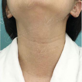 嗨体祛颈纹