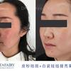 [术后120天] 客户面部、眼周有色斑、色沉,肤色暗黄、油腻 通过C6白瓷娃娃净肤美白,提亮肤色;配合皮秒祛斑 白瓷娃娃治疗3次,每次治疗间隔1个月;皮秒激光1次