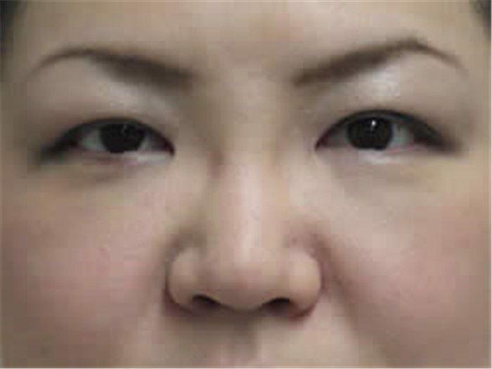 術后一周復診效果,眼袋已經完全消失