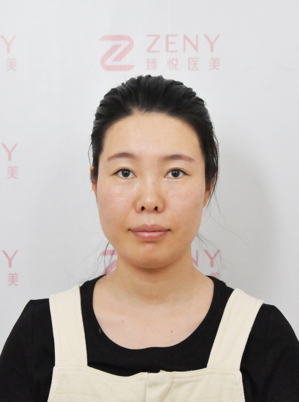 中国台湾风靡的激光美肤黑科技 项目分类:皮肤管理 美白嫩肤 彩光嫩肤